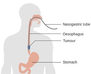 Oesophageal Cancer in Bradbury, Sydney