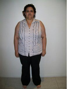 Rebecca 12months Before Sleeve Gastrectomy1