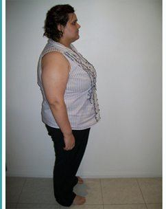 Rebecca 12months Before Sleeve Gastrectomy2